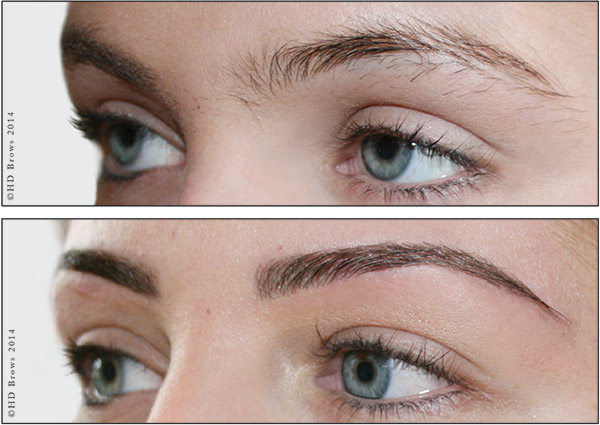HD Brows, Before and After Treatment